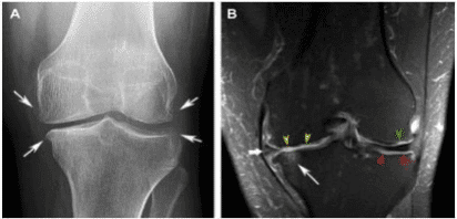 Imaging of Osteoarthritis in the knee (Hunter DJ (1999)4 Fig 1).